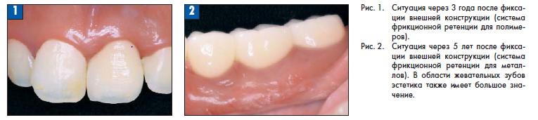 Непрерывный придесневой контур  с системой фрикционной ретенции